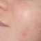 Maxx IPL benign pigmented lesions after cropped
